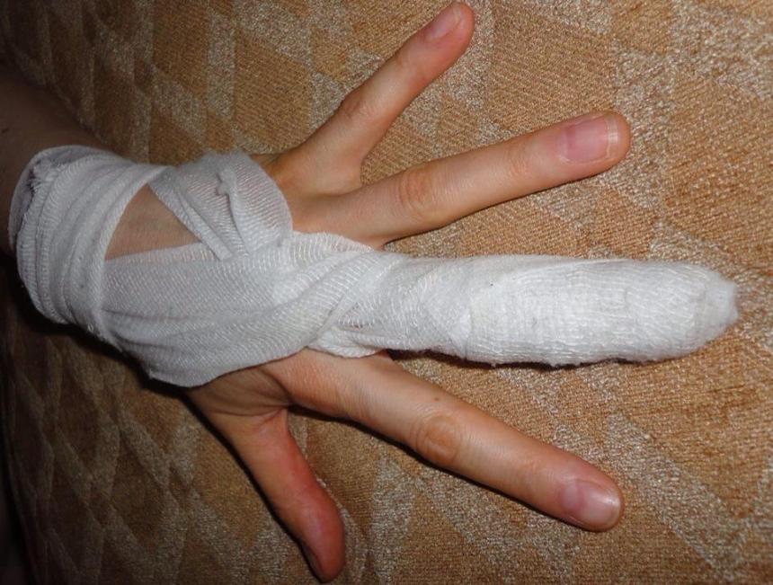 Для, сломанный палец смешная картинка